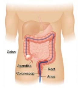 fjernelse af polypper i tarmen